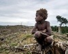 Atasi Gizi Buruk Masyarakat Nomaden di Pelosok Harus Bisa Bercocok Tanam